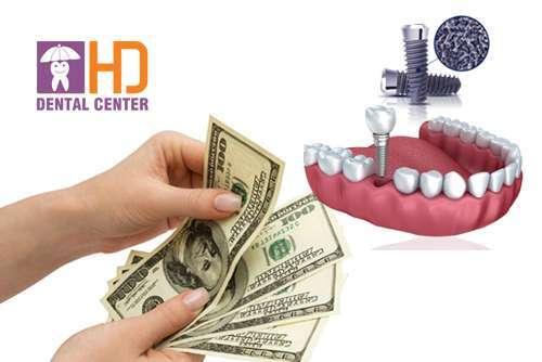 Chi phi trồng răng Implant