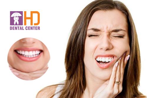 5 biểu hiện thường gặp sau khi bọc răng sứ
