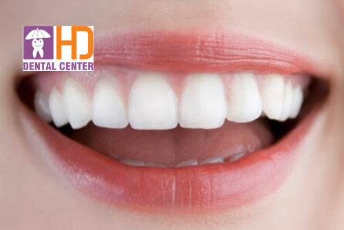 Bọc sứ 4 răng cửa có nên không?