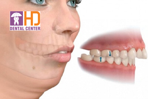 Có nên bọc răng sứ cho răng hô? Chi phí bọc răng sứ cho răng hô có mắc không?