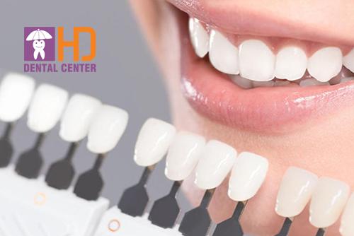 Dán sứ veneer không mài răng có nên không?