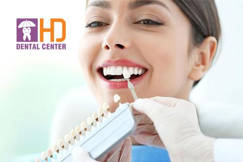 Kinh nghiệm bọc răng sứ hiệu quả nhất cho mọi người