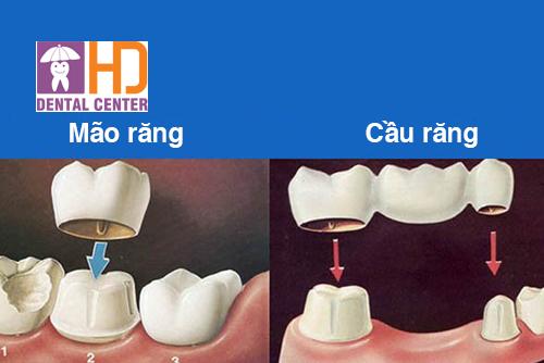 Mão răng và cầu răng là gì?