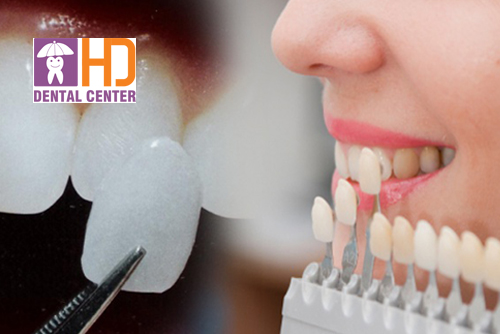 Nên làm răng sứ Mỹ hay răng sứ Veneer?