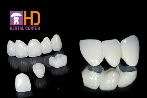 So sánh các loại răng sứ? Nên dùng răng sứ của hãng nào?