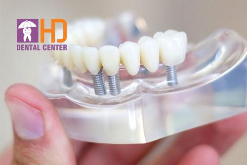 Tất cả các loại răng sứ phổ biến hiện nay