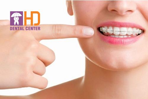 Bật mí cách vệ sinh răng khi đeo mắc cài