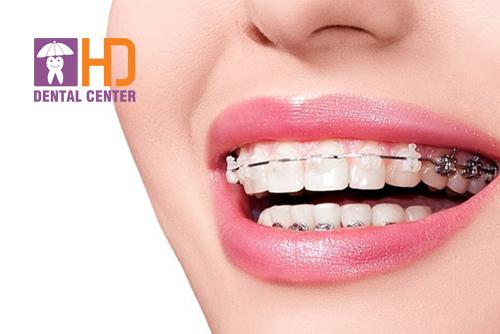 Bệnh nhân nên niềng răng mắc cài sứ hay kim loại
