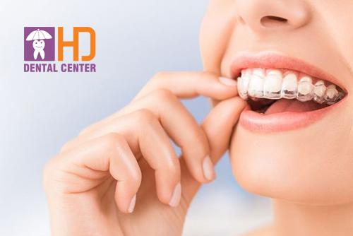 Các loại niềng răng trong suốt tốt nhất