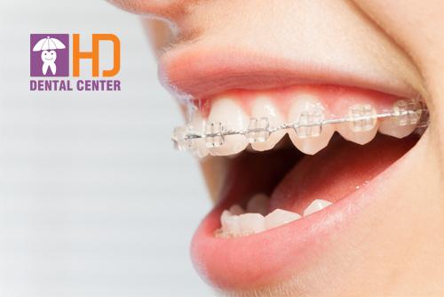 Có mấy loại niềng răng và nên dùng cách nào?