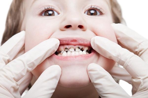 Có nên trám răng sâu cho trẻ em
