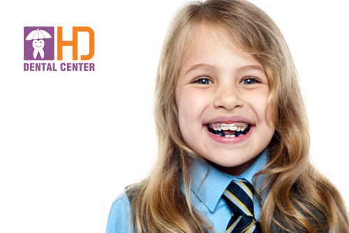 Khi nào nên chỉnh răng cho trẻ em