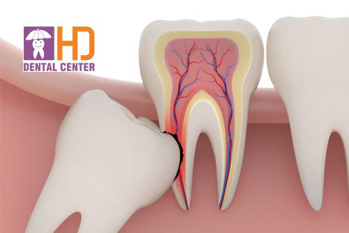 Những biến chứng sau khi nhổ răng khôn bạn nên biết