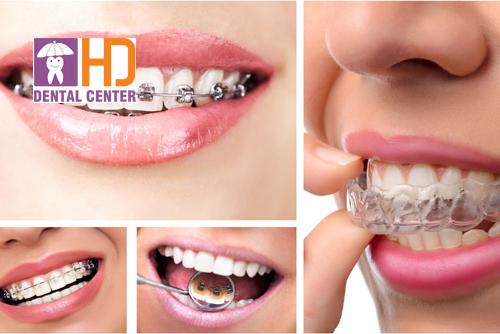 Những công nghệ niềng răng mới nhất hiện nay