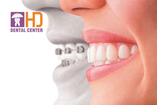 Những nguyên nhân dẫn đến niềng răng không thành công