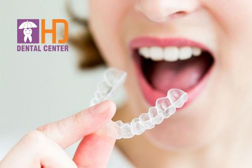 Niềng răng hô bằng phương pháp niềng răng invisalign có thực sự mang lại hiệu quả không