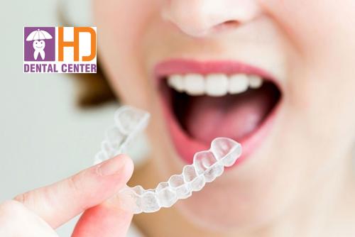 Niềng răng invisalign là gì? Ưu và nhược của phương pháp này
