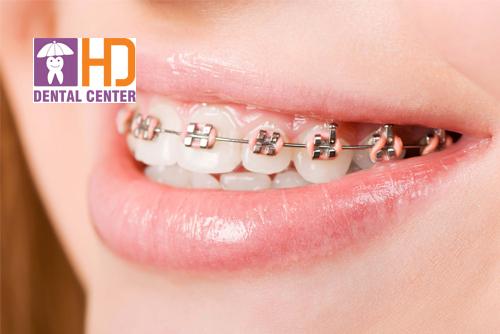 Niềng răng mất bao lâu, trung tâm nào niềng răng uy tín