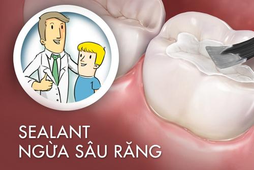Sealant là gì? Có nên trám Sealant phòng ngừa sâu răng