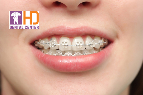 Tìm hiểu quá trình kéo răng khi niềng răng