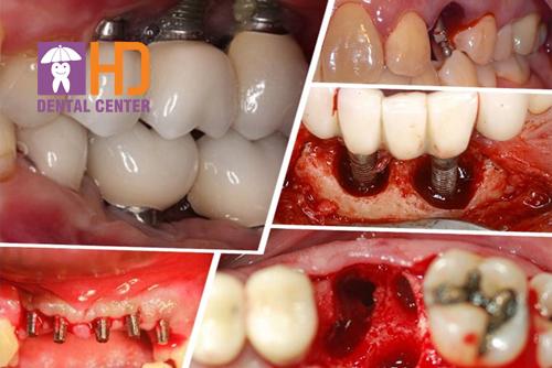 Nhiễm trùng Implant? Biến chứng nguy hiểm và cách xử lý