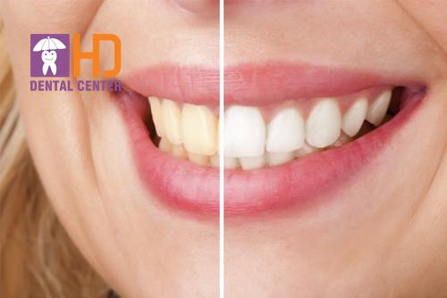 Tẩy trắng răng có đau không? Địa điểm tẩy trắng răng uy tín