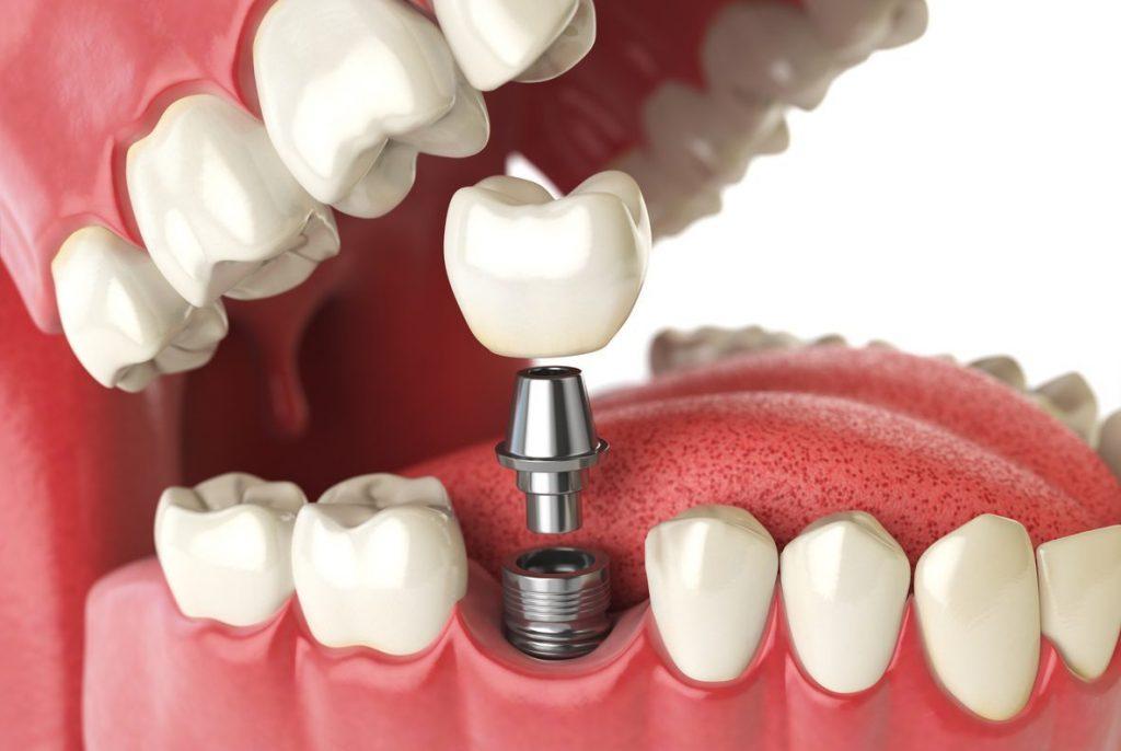 Cấy ghép implant mất bao lâu là thích hợp?
