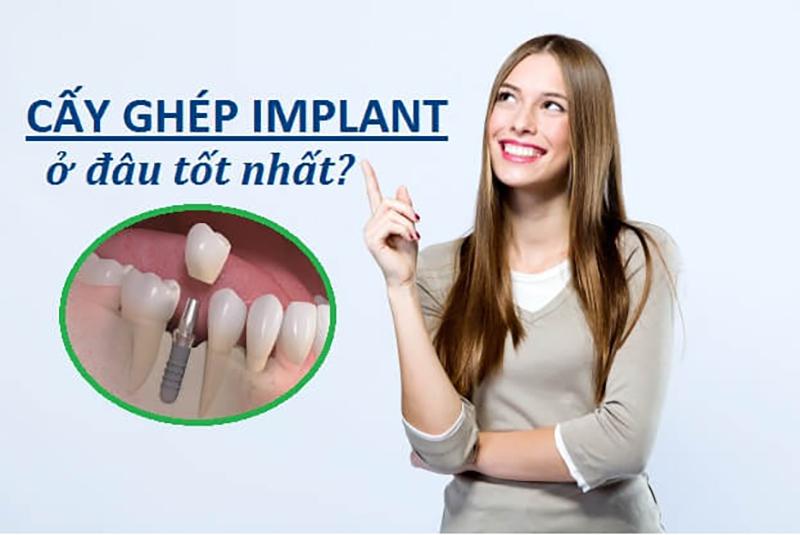 Cấy ghép răng implant ở đâu tốt?