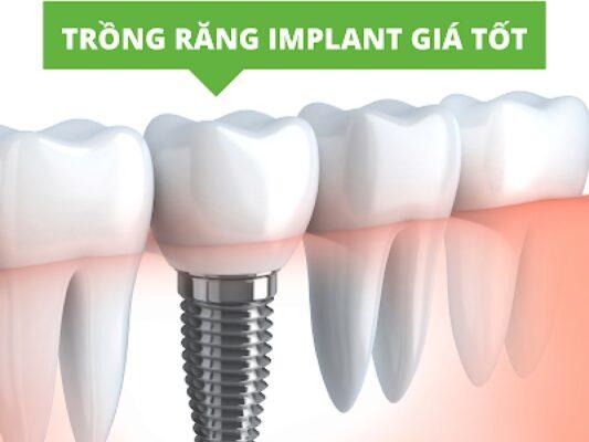 Cấy ghép răng implant mất bao nhiêu tiền?