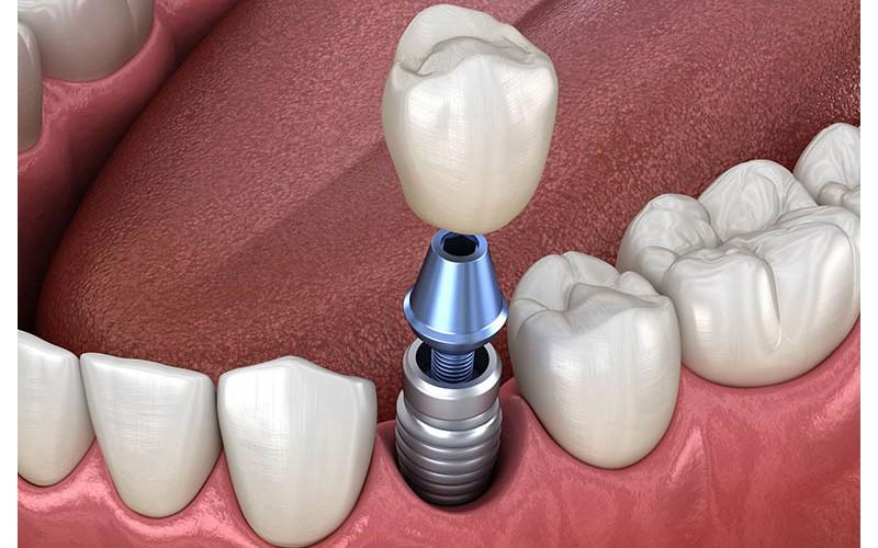 Cấy implant bao nhiêu tiền còn phụ thuộc vào tình trạng răng và dịch vụ lựa chọn