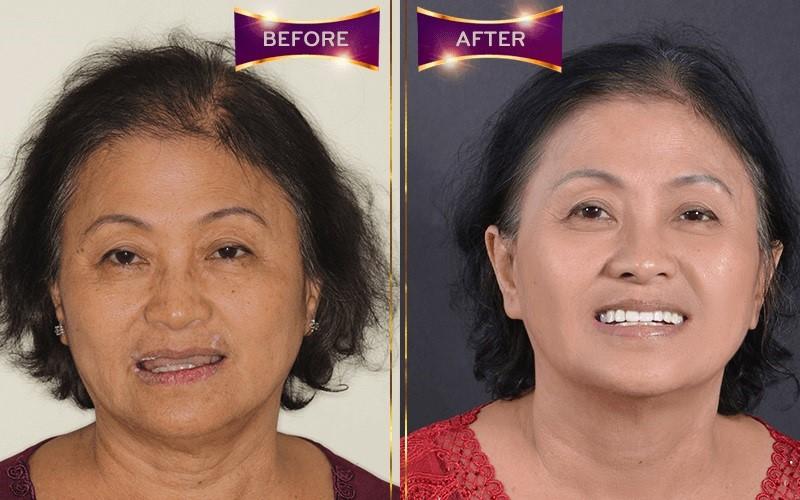 Hình ảnh khách hàng trước và sau khi trồng răng implant tại Worldwide
