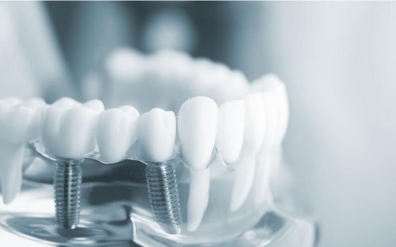 Khi làm răng implant cần lưu ý lựa chọn địa chỉ uy tín và chất lượng