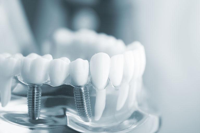 Làm răng implant ở đâu tốt TP. HCM?