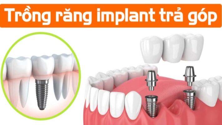 Trồng Răng Implant Trả Góp Tại Worldwide