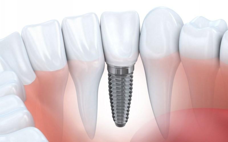 Ưu điểm của trồng răng Implant