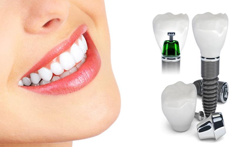 bảng giá cấy ghép Implant bệnh viện răng hàm mặt