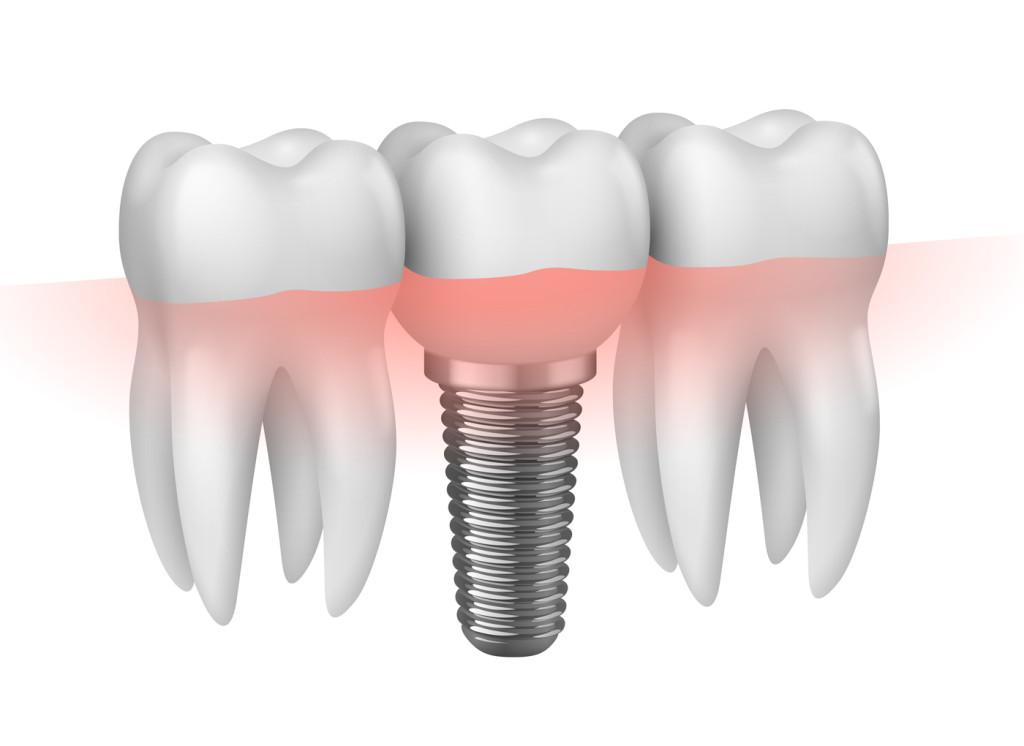 Cấy ghép implant mất bao lâu?