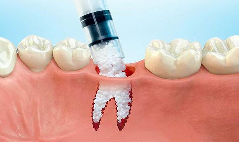 Ghép xương hàm giúp tăng chất lượng xương
