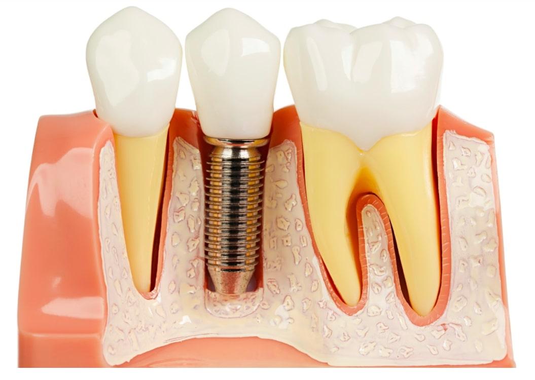 Công nghệ cấy ghép Implant là gì?