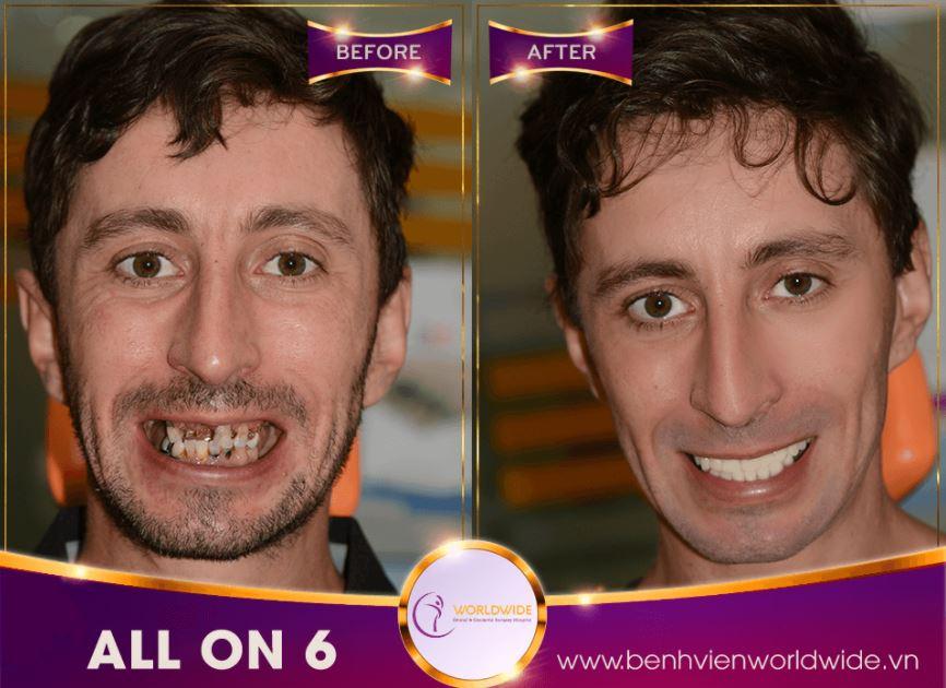 Dịch vụ cấy ghép răng implant là gì?