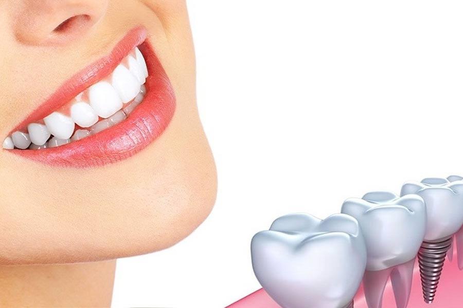 Gắn răng sứ trên Implant