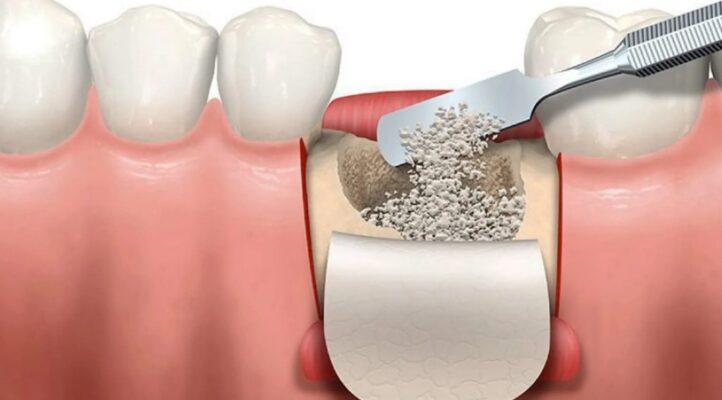 Ghép xương cấy Implant có đau không?