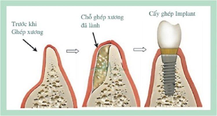 Cấy ghép xương hàm