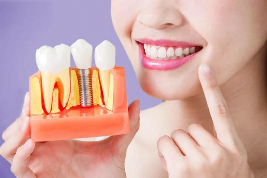 Giá cấy ghép răng implant phụ thuộc vào yếu tố nào?