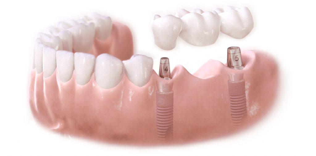 Kỹ thuật cấy ghép răng Implant cao cấp