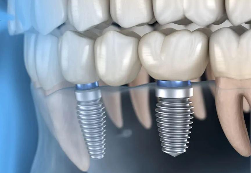 Nên cấy ghép răng implant ở đâu?