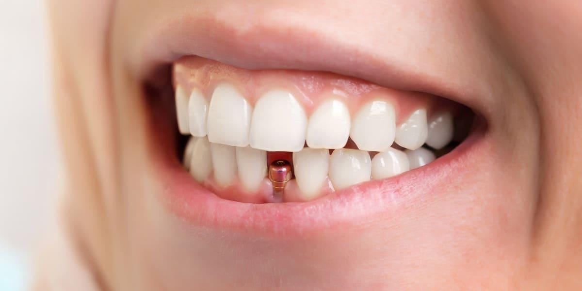 Những ai có thể cấy ghép Implant?