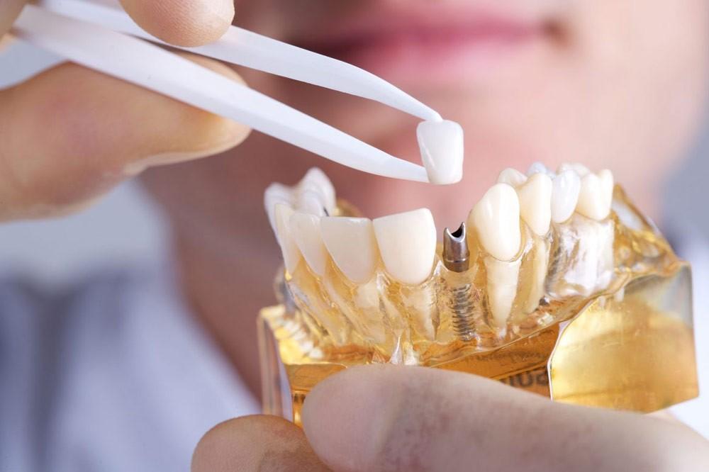 Phương pháp cấy ghép Implant - giải pháp phục hình tối ưu