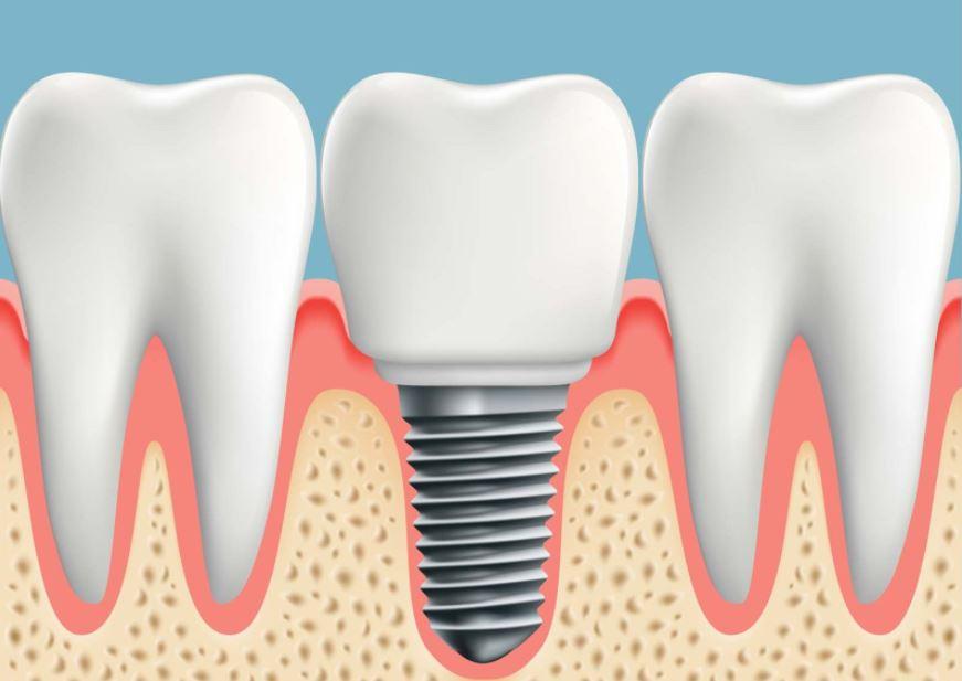 Phương pháp trồng răng implant có đau không?