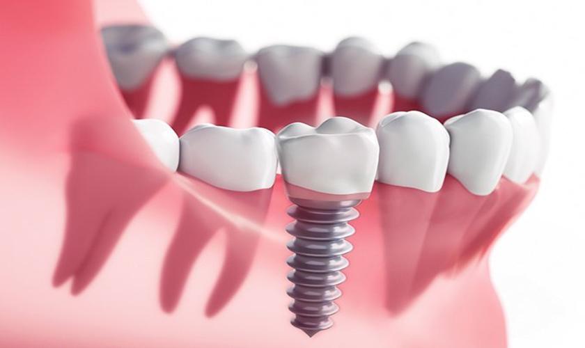 Răng sứ implant giá bao nhiêu?